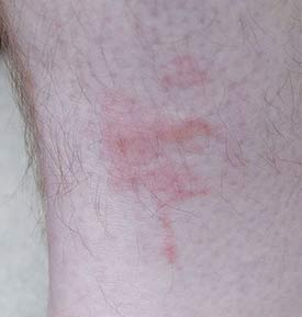 Image of a man's ankle with numerous swollen bed bug bites.